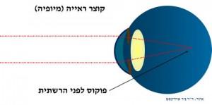 """קוצר ראייה הגדרה: קרני האור נשברים חזק מידי בעין עם קוצר ראייה (מיופיה) ולכן קרני האור יהיו לפני רשתית העין, תמונה ד""""ר ניר ארדינסט"""