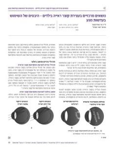 """מאמר סקירה אודות עצירת המרשם במשקפיים ד""""ר ניר ארדינסט ופרופ' יאיר מורד.כל הזכיות יוצרים למאמר מוקנות למדיקל מדיה"""